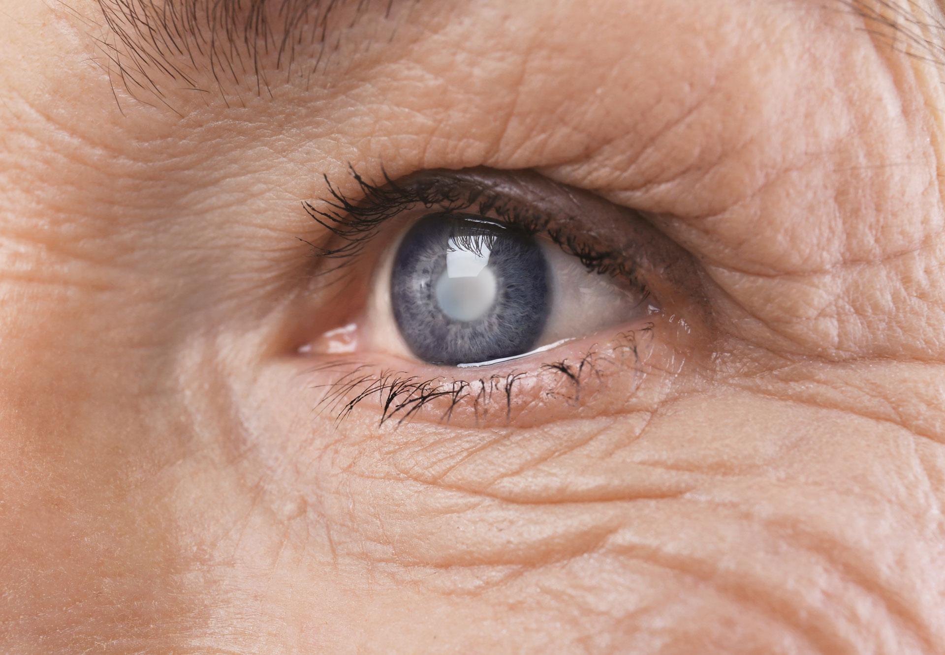 cataract-surgery-needed