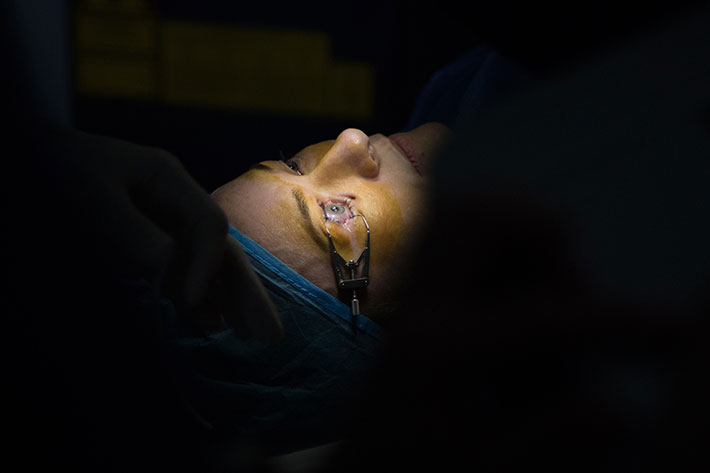 Laser-Surgery-procedure