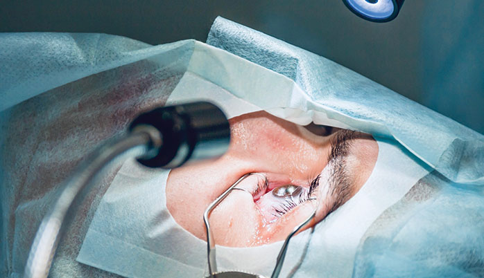 cataract-surgery-in-progress